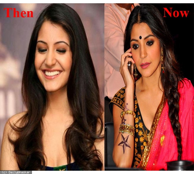 Anushka Sharma Lip Job Before And After Pictures001